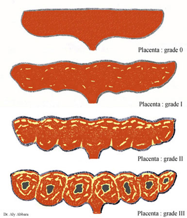 placenta_grade_maturite.jpg