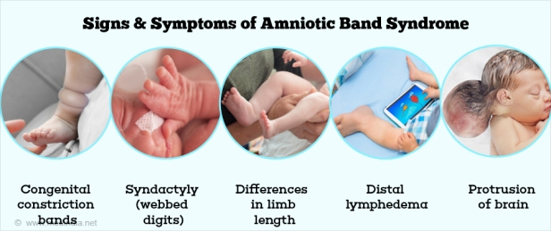 signs-and-symptoms-of-amniotic-band-syndrome.jpg